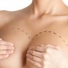 Oncoplastica: ricostruzione mammaria post-mastectomia