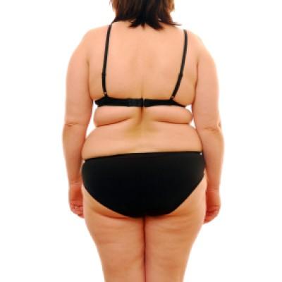 Chirurgia Obesità
